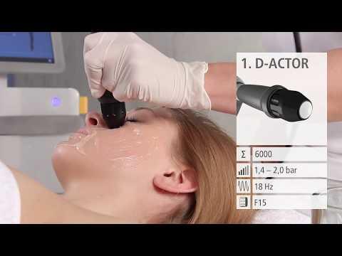 Удаление морщин на лице, на шее, на лбу и вокруг глаз