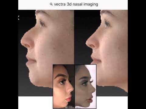 Back Bay - 3D imaging With Vectra - Boston, MA