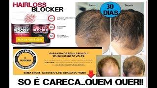 COMO ACABEI MINHA QUEDA DE CABELO COM  HAIRLOSS BLOCKER #30DiasUsando #Fenomenal