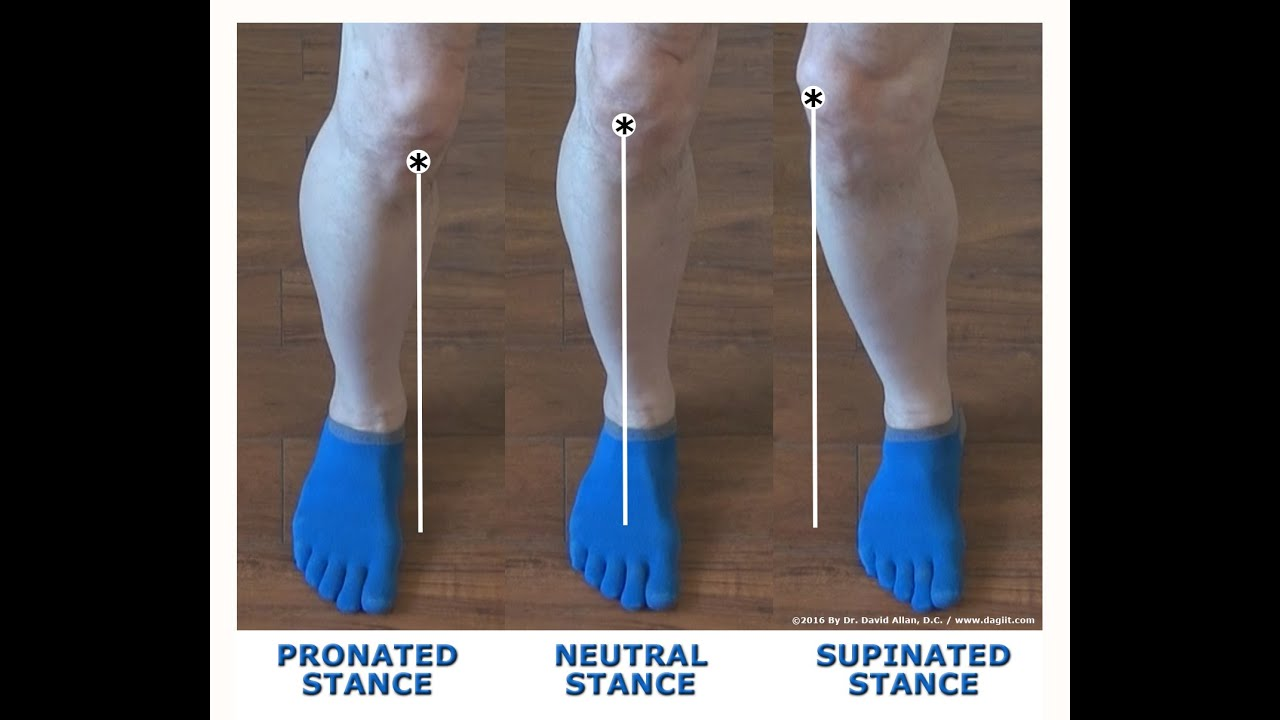 posture analysis correction body knee assessment over the feet