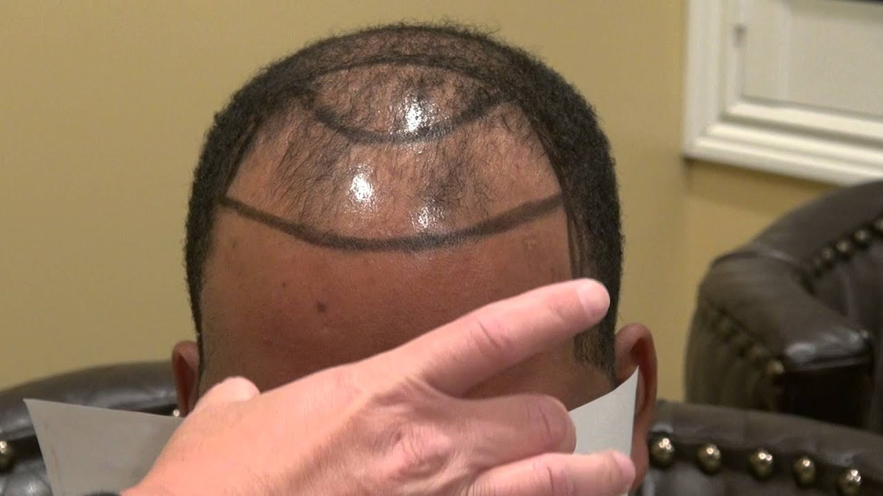 FUE for Advanced Hair Loss on Balding Black Man Dr. Diep www ...