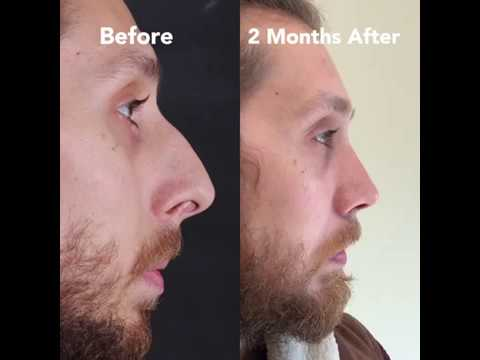 Male Closed Rhinoplasty | Assoc.Prof.Dr. Suleyman TAS