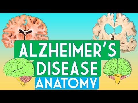 Alzheimer's disease anatomy- Soton Brain Hub