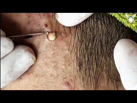 CYSTIC ACNE, BLACKHEADS REMOVAL ON THE FACE - Acne Treatment With Relaxing Music 190417!