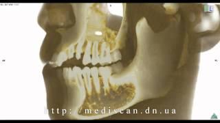 КТ придаточных пазух носа(КТ придаточных пазух носа - http://mediscan.dn.ua/kt_temporal.html., 2013-11-03T10:31:38.000Z)