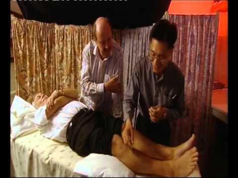 Acupuntura   BBC2   Acupuncture
