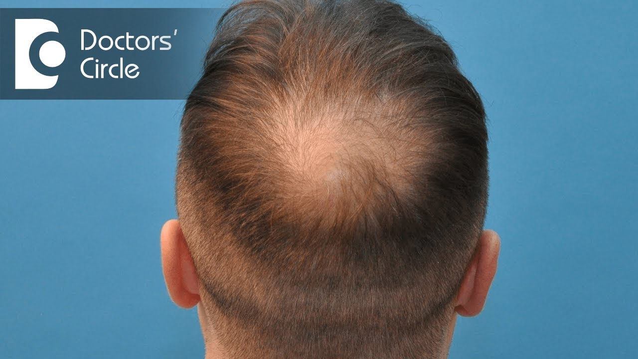 Management For Hair Loss At Crown Area In Young Hypothyroid Men Dr Aruna Prasad