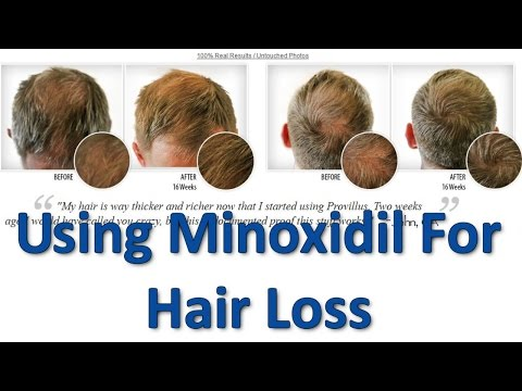Using Minoxidil for Hair Loss – For Men ONLY
