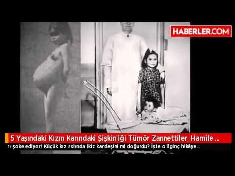5 Yaşındaki Kızın Karındaki şişkinliği Tümör Zannettiler Hamile