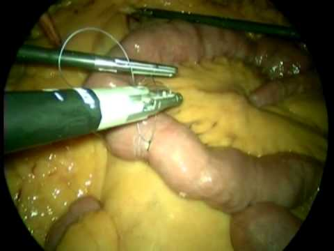 Revision Of Sleeve Gastrectomy To Roux En Y Gastric Bypass For