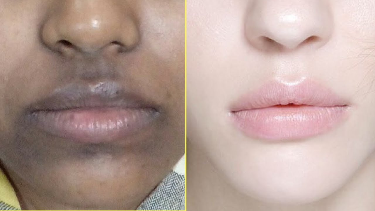 how to get rid of hyperpigmentation around mouth