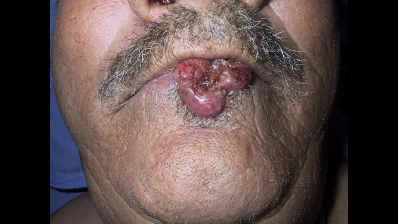 La tromboflebitis de las venas superficiales de las extremidades inferiores el tratamiento quirúrgic