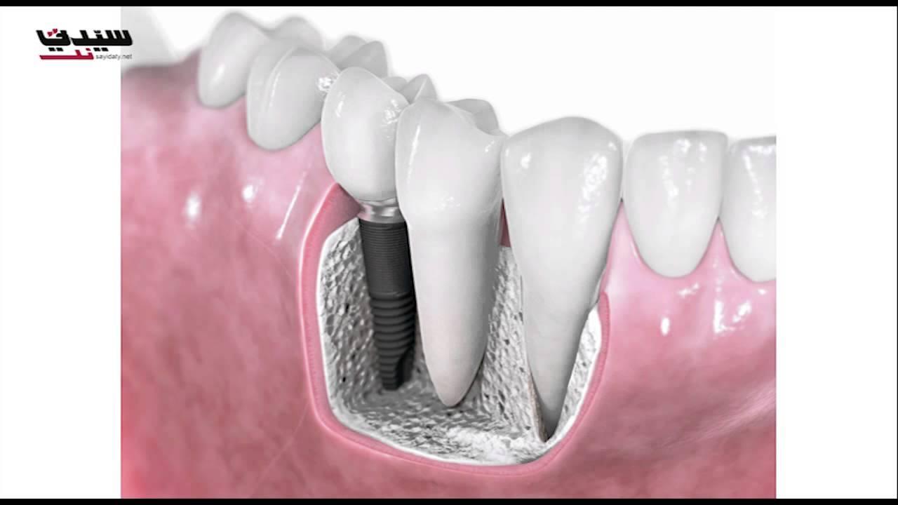 تقنية جديدة لزراعة الأسنان في نصف ساعة Youtube