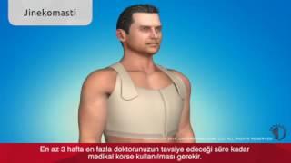 Jinekomasti (Erkekte Meme Küçültme) Ameliyatı Videosu Bursa
