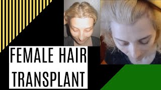 Hair transplant in Female pattern baldness @India @Darling Buds