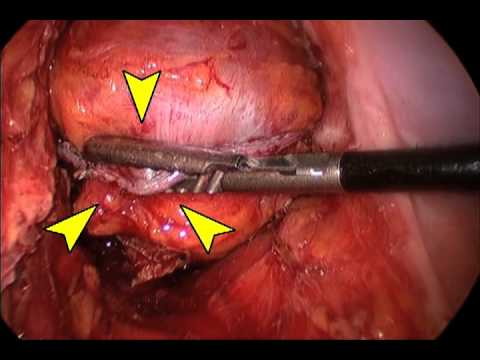Laparoscopic End to End (EEA) ColoRectal Anastomosis