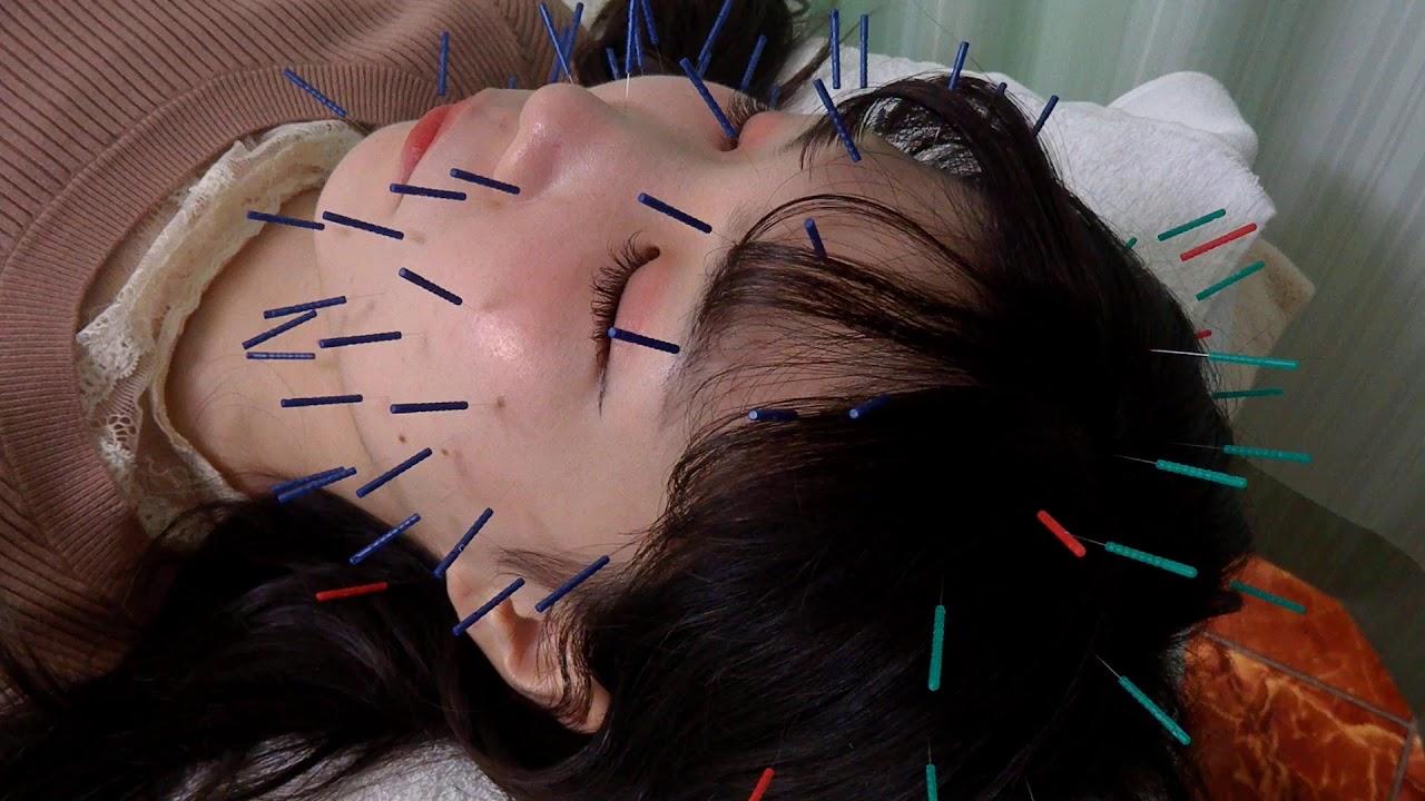 小顔の美容鍼|東京都のヒデ鍼灸院