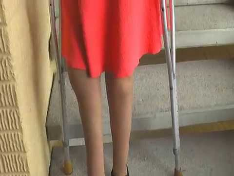 rayannes days of walking are numbered ( crutches, polio legs, pretty feet)