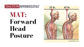 Erik Dalton - Forward Head Posture = Fixing Funky Necks