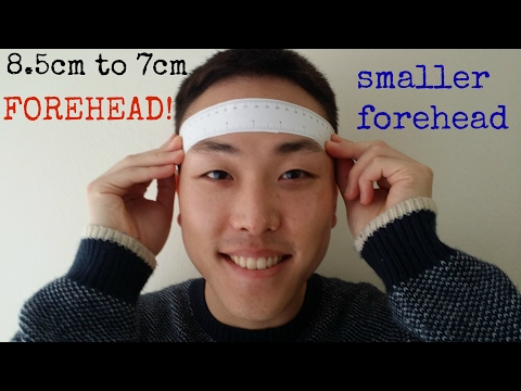5head-to-4head---smaller-forehead-after-hair-transplant
