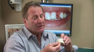 Poway CA Cosmetic Dentist Dental Health - Missing Something? Options for a missing tooth Thumbnail