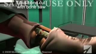 Lower Leg Amputation Surgery (Amputated Leg)