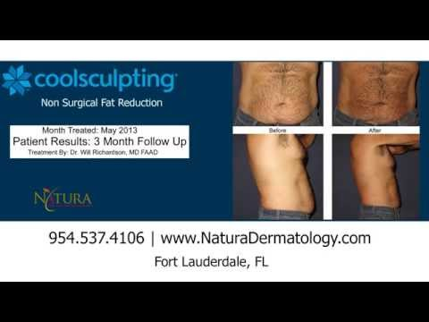 CoolSculpting | Before & After Photos | Fort Lauderdale, FL | Broward County