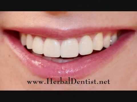 Herbal Dentist™ Tooth & Gum Oil • Gingivitis • Periodontal Disease • Gum Disease Help •  Short Video