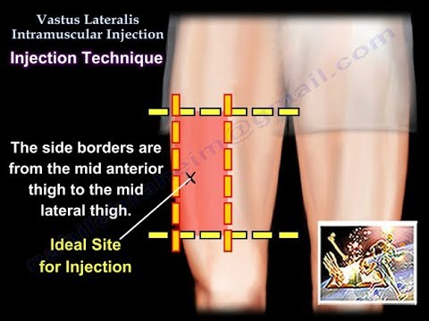 Vastus Lateralis Intramuscular Injection - Everything You Need To Know -  Dr  Nabil Ebraheim