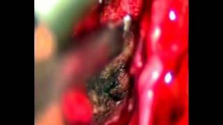 Lumbar Microdiscectomy - Χειρουργείο Δισκοκήλης (Thrace-Greece)