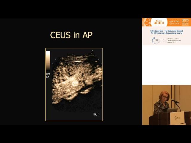 Fundamentals of interpretation of Liver CEUS