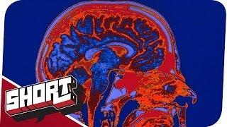 24h wach - Schizophren durch Schlafmangel?