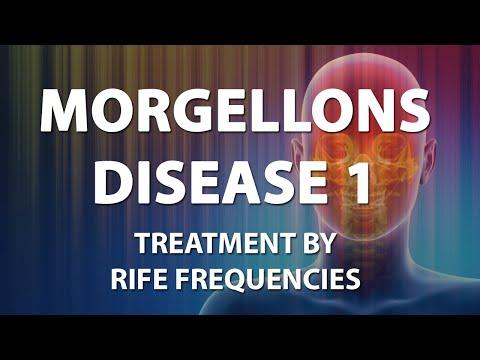 Morgellons Disease 1 - RIFE Frequencies Treatment - Energy & Quantum Medicine with Bioresonance