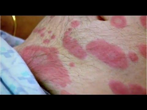 Skin Problem - Bizarre ER