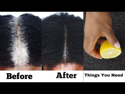 SIMPLEST WAY TO TURN GREY HAIR TO BLACK HAIR IN 3 DAYS