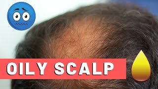 Oily scalp is a common problem, experienced by everyone at some point in their lives. 📦claim your free derma roller: https://www.hairguard.com/p/dermaroller...