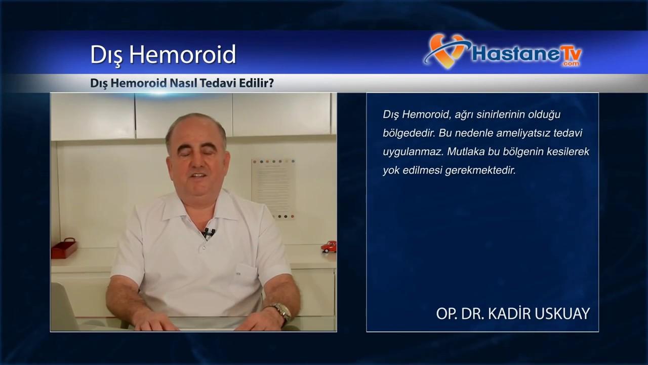 İç hemoroid belirtileri, nedenleri ve tedavisi