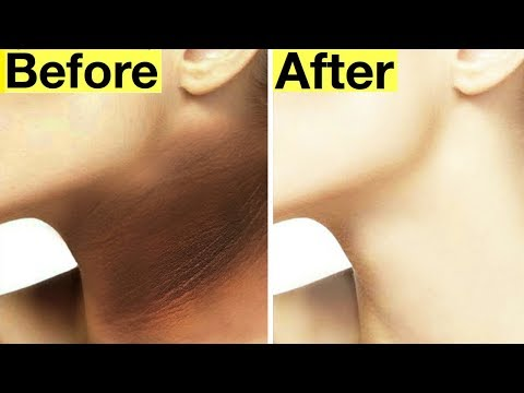 Dark Neck Whitening | Lemon Juice For Dark Neck | How to Get Rid of Dark Neck Fast and Naturally