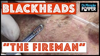"""The Fireman"" returns:  Blackhead Extractions and  we see how he"