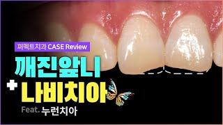 깨진앞니(치아파절) + 나비치아 | 최소삭제 라미네이트