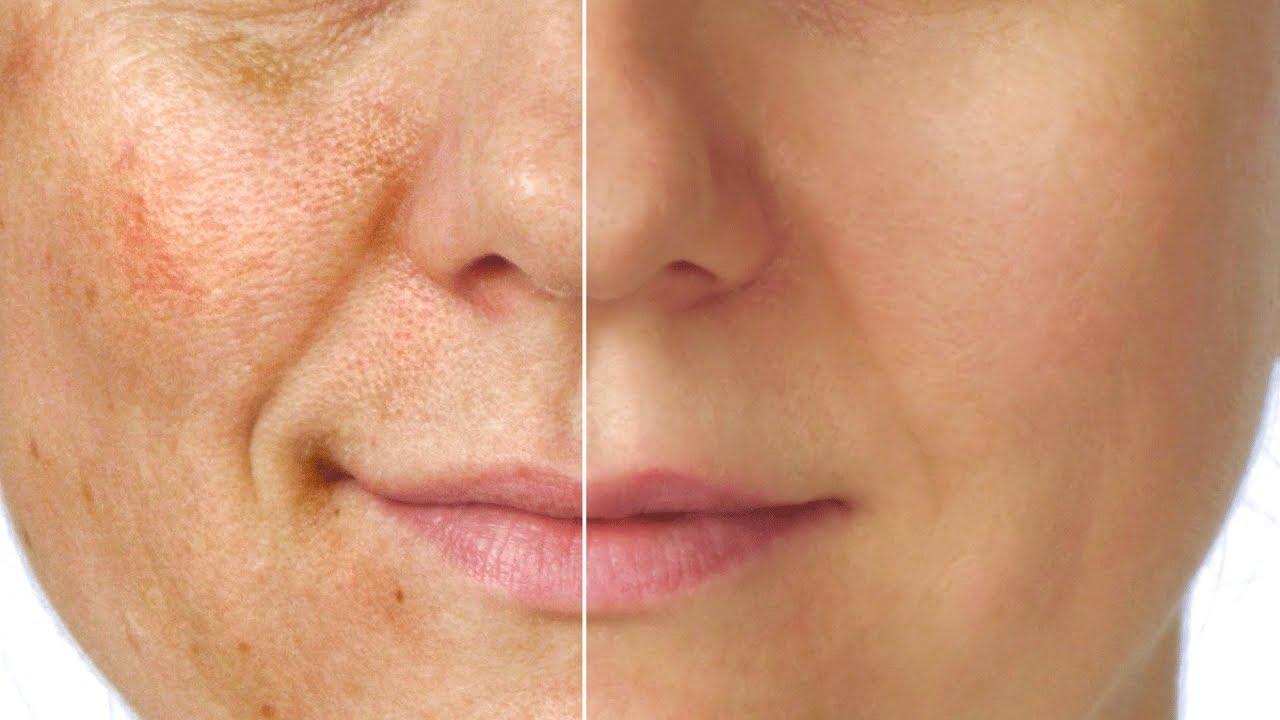 How to treat facial hyperpigmentation? - Dr  Priyanka Dasari Reddy