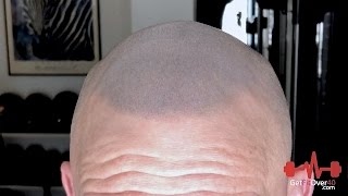 Getting Real Series - SMP Scalp Micropigmentation Final Results