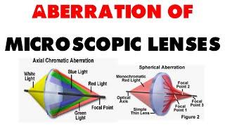 Aberration of microscopic lenses   chromatic aberration, spherical aberration and coma effect thumbnail