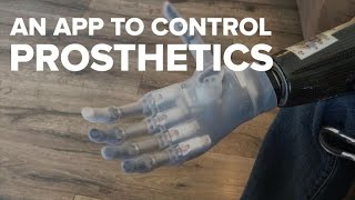 An app could help amputees better control their prosthetics