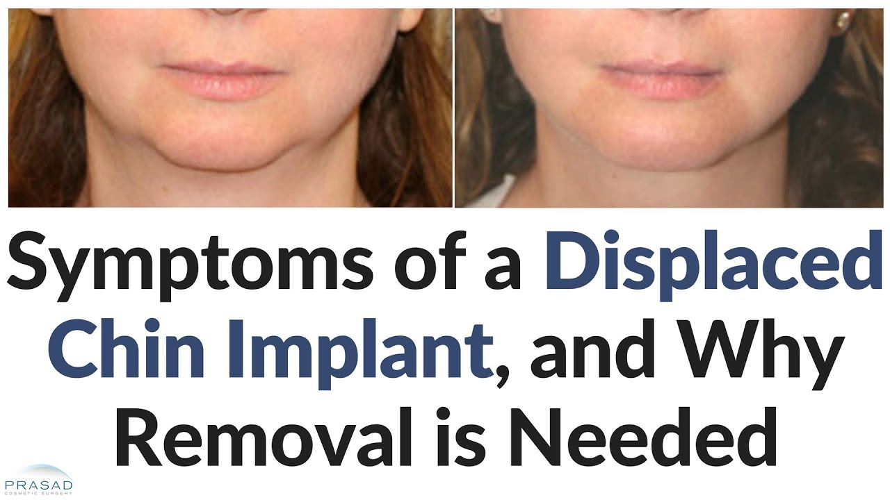 Symptoms of a Likely Displaced Chin Implant, and Why Removal
