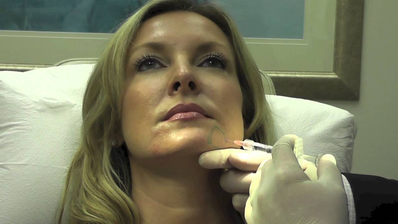 Rejuvenation of the Lower Face with Injectable Filler