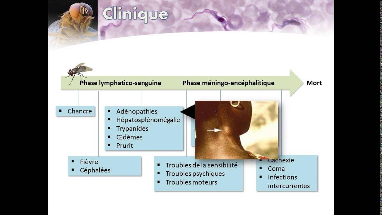 Trypanosomiase humaine africaine (Maladie du Sommeil)