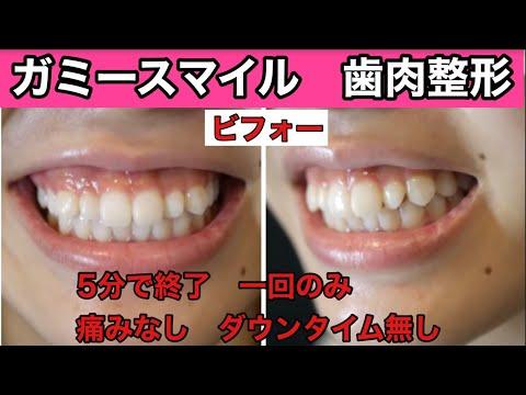 物心がついた時から笑った時に見える歯茎が気になっていました