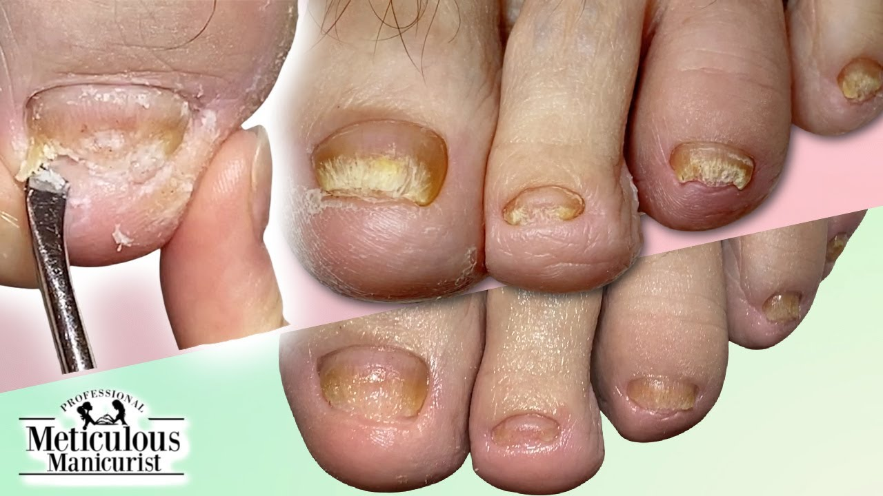 👣CUTICLE Cleaning on FUNGAL TOENAILS Transformation👣