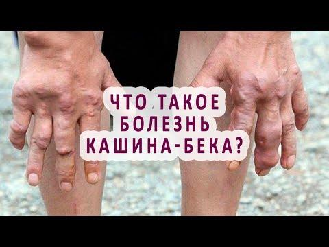 Что такое болезнь Кашина-Бека?